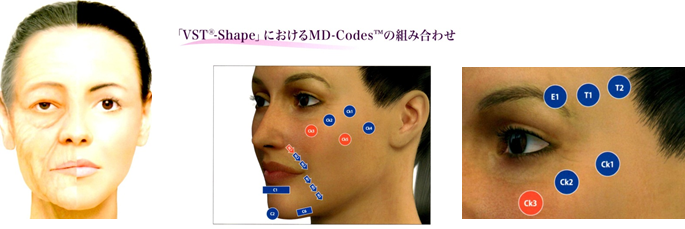 MD-Codes  / VST-Shape  / VST-Eye  MYシェイプ